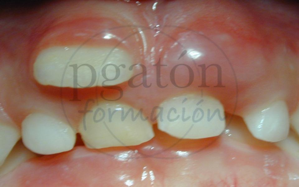 Extracción de dientes temporales