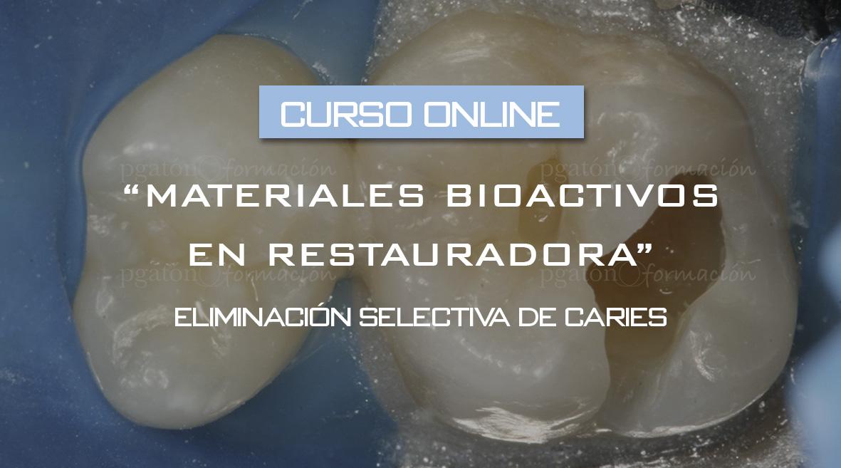 Curso Online – Materiales bioactivos en odontología restauradora